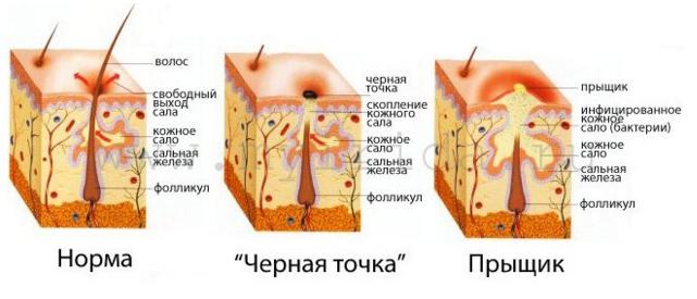 Лечение сальной железы на лице