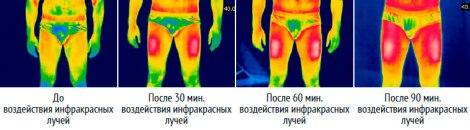 Тепловизионная съемка воздействия термобелья с подогревом RedLaika на ноги