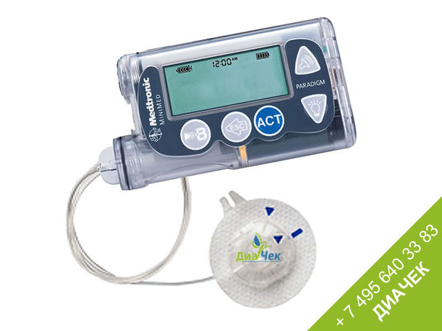 инсулиновая помпа от диабета фото