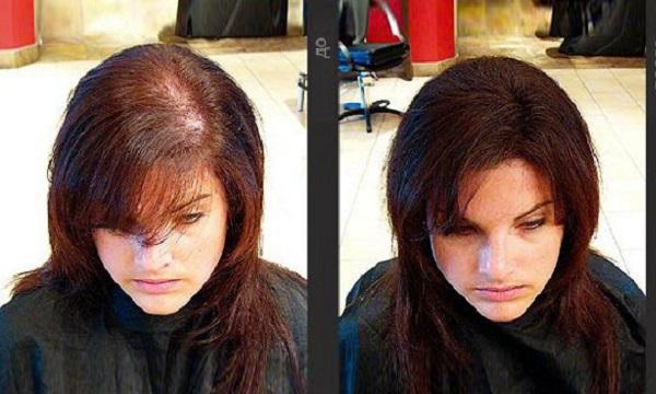 мезороллер для волос