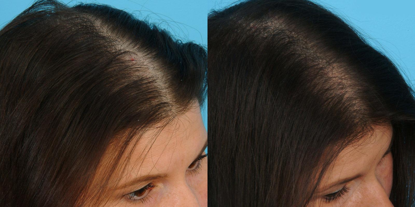 купить мезороллер для волос