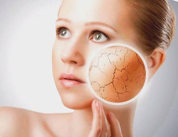 Сухой тип кожи является одним из самых распространенных
