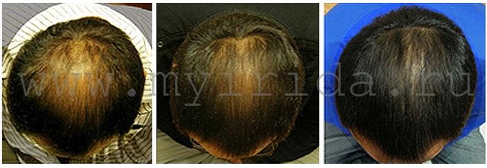 мезороллер 540 игл для волос