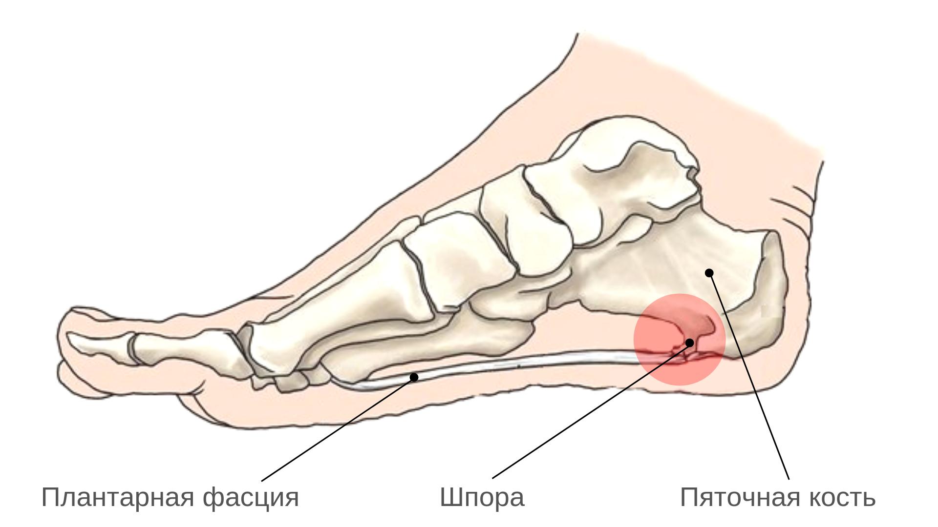 Шпоры на ступне лечение симптомы причины профилактика