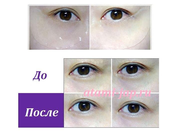 Гидрогелевые патчи для кожи вокруг глаз Essense gel (с N.M.F.)