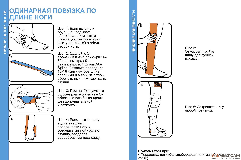 Одинарная повязка по длине ноги