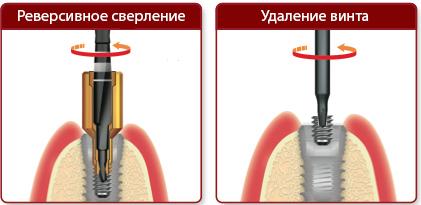 NeoBiotech набор для извлечения поврежденных винтов