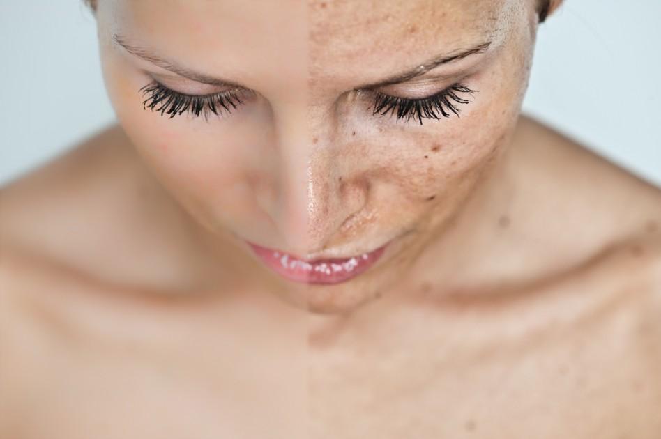 Можно ли победить гиперпигментацию кожи