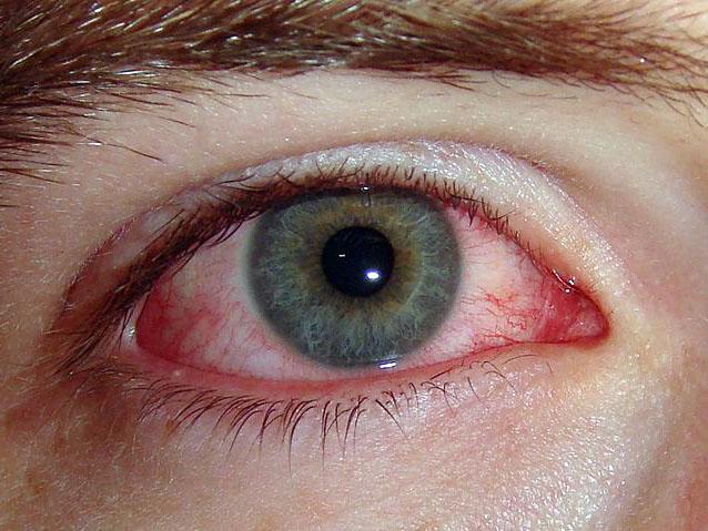 allergicheskii-konunktivit.jpg