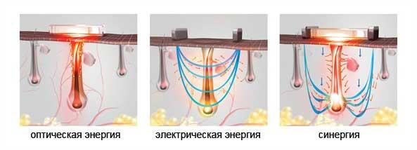 Воздействие элос эпилятора на фолликул волоса