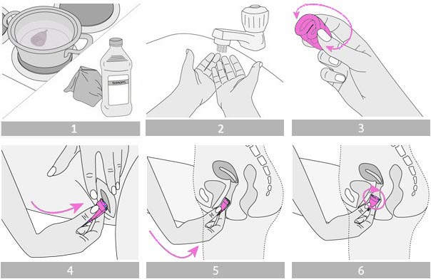 Инструкция как вводить менструальную чашечку