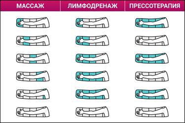 Надув камер в режимах массаж, лимфодренаж и прессотерапия
