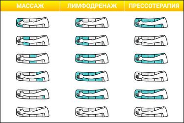 Массаж, лимфодренаж и прессотерапия в манжете для руки WelbuTech Seven Liner