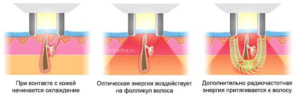 При работе элос-эпилятора на волос воздействует два вида энергии