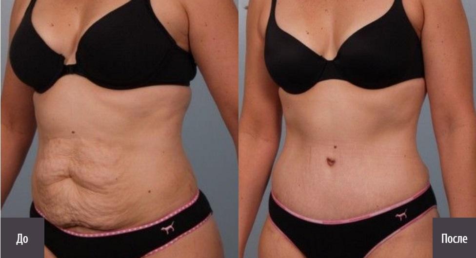 Кожа Груди При Похудении. Красивая грудь: можно ли сохранить ее объем и форму после похудения
