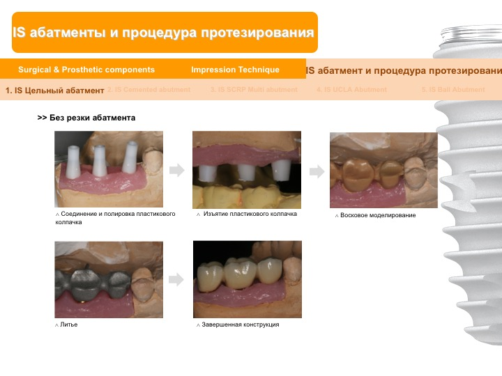 Neobiotech_Руководство_по_протезированию_23.jpg