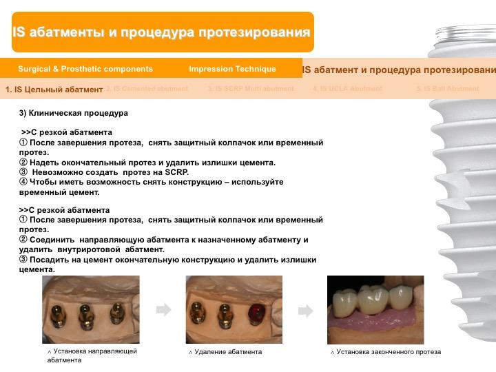 Neobiotech_Руководство_по_протезированию_25.jpg