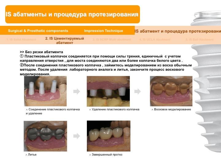 Neobiotech_Руководство_по_протезированию_32.jpg