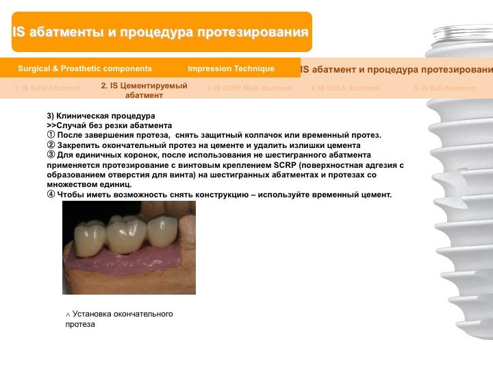 Neobiotech_Руководство_по_протезированию_34.jpg