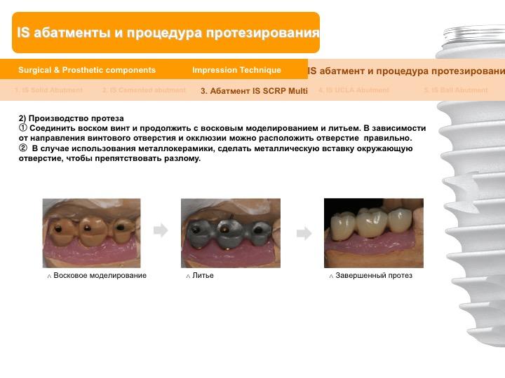 Neobiotech_Руководство_по_протезированию_45.jpg