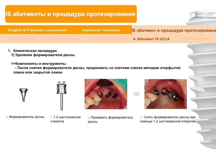 Neobiotech_Руководство_по_протезированию_52.jpg