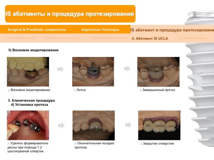 Neobiotech_Руководство_по_протезированию_55.jpg