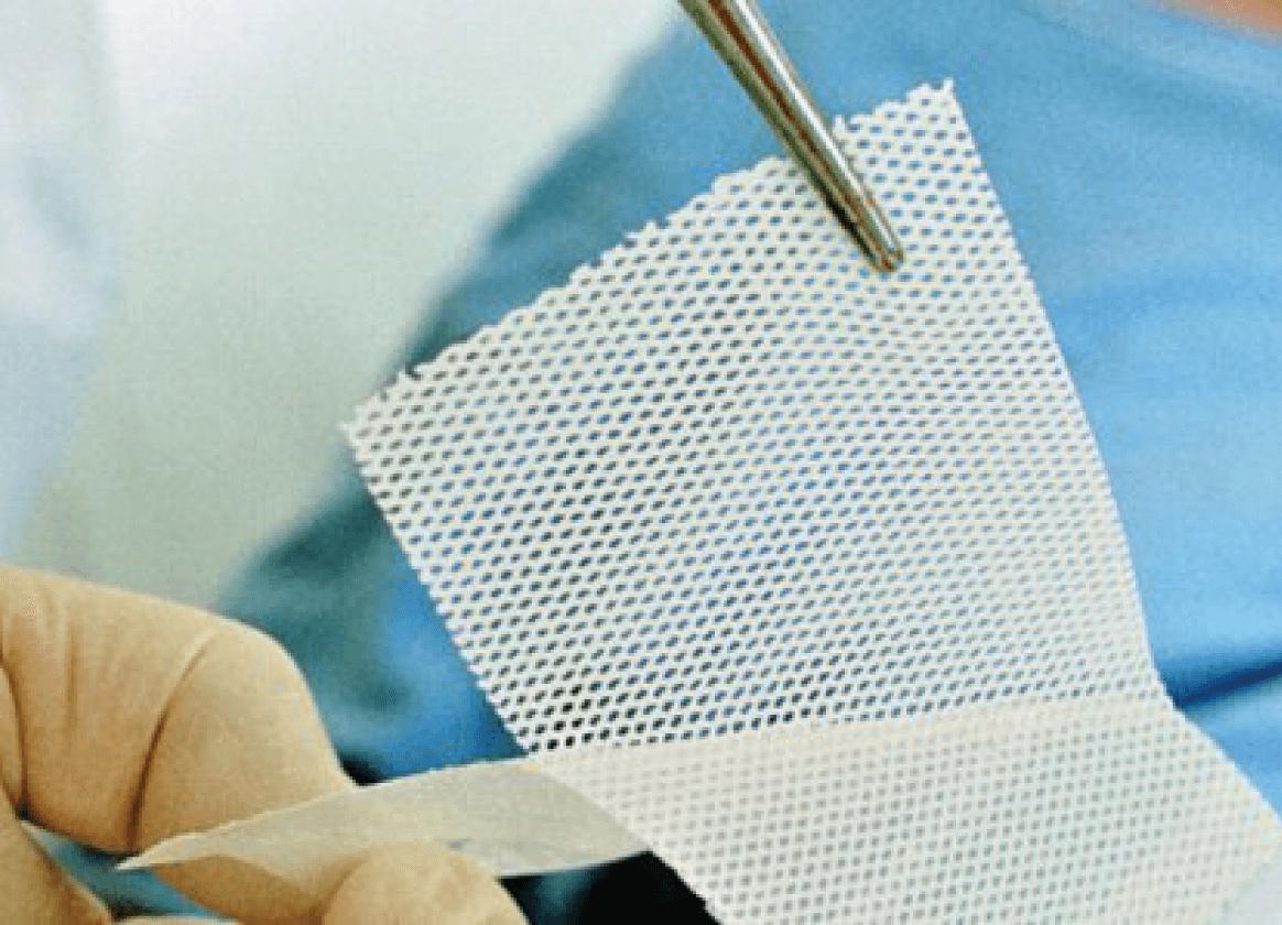 сетчатая атравматичная повязка для лечения ран - современное перевязочное средство