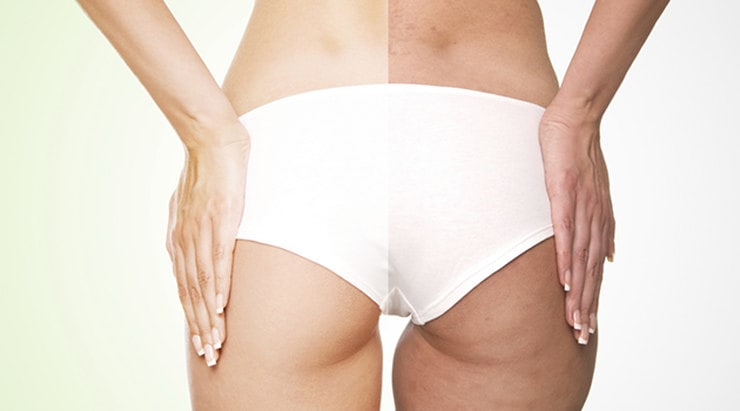 Целлюлит: как ухаживать за кожей и правильно питаться