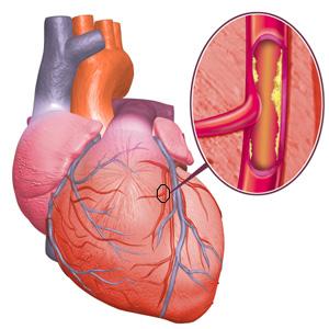 Сердечно-сосудистые заболевания: симптомы, причины, факторы риска ...