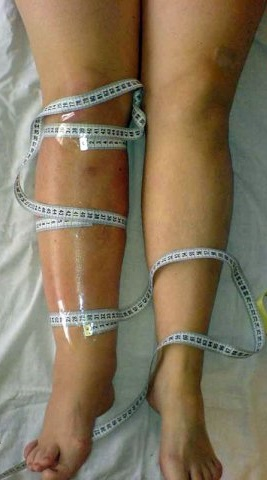 на ногах фото лимфостаз