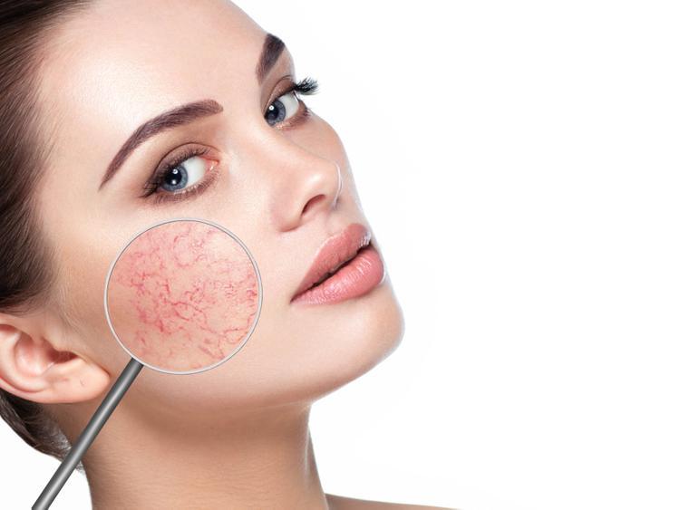 Купероз на лице: особенности, причины и лечение