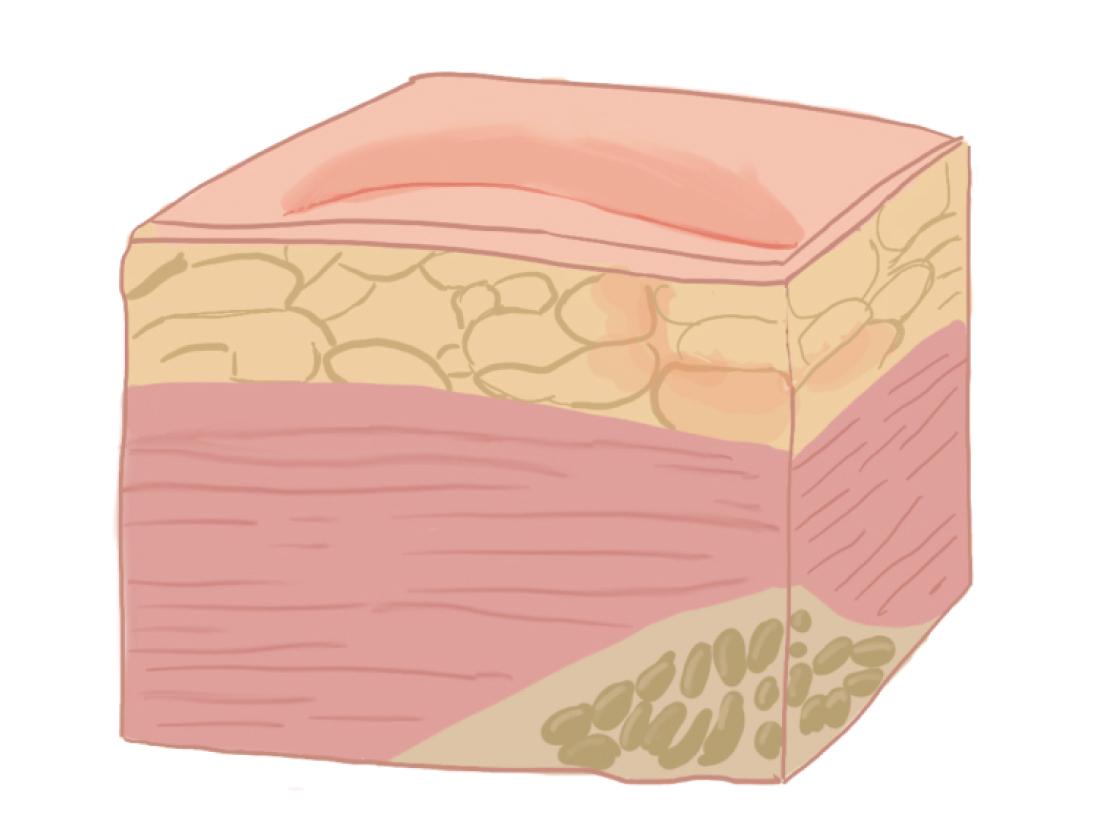 Рисунок: поражение тканей на I стадии пролежня.