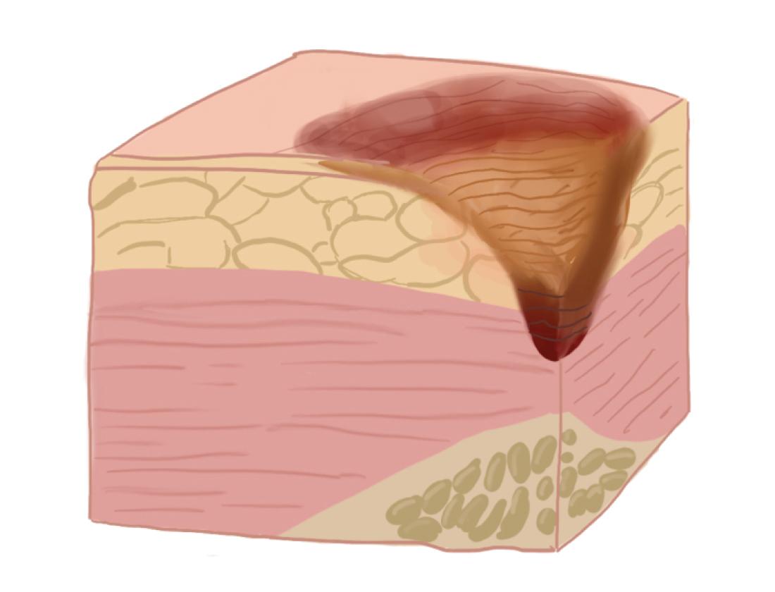 Рисунок: поражение тканей на III стадии пролежней.