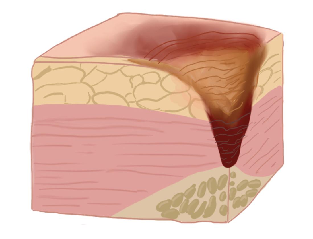 Рисунок: поражение тканей на IV стадии пролежней.