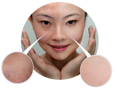 Матирующие средства для кожи из кореи