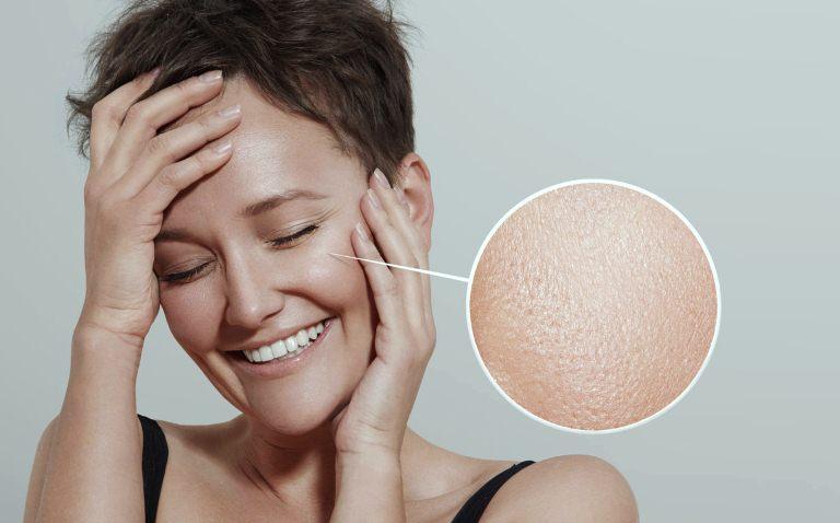 Жирная кожа: причины и способы лечения