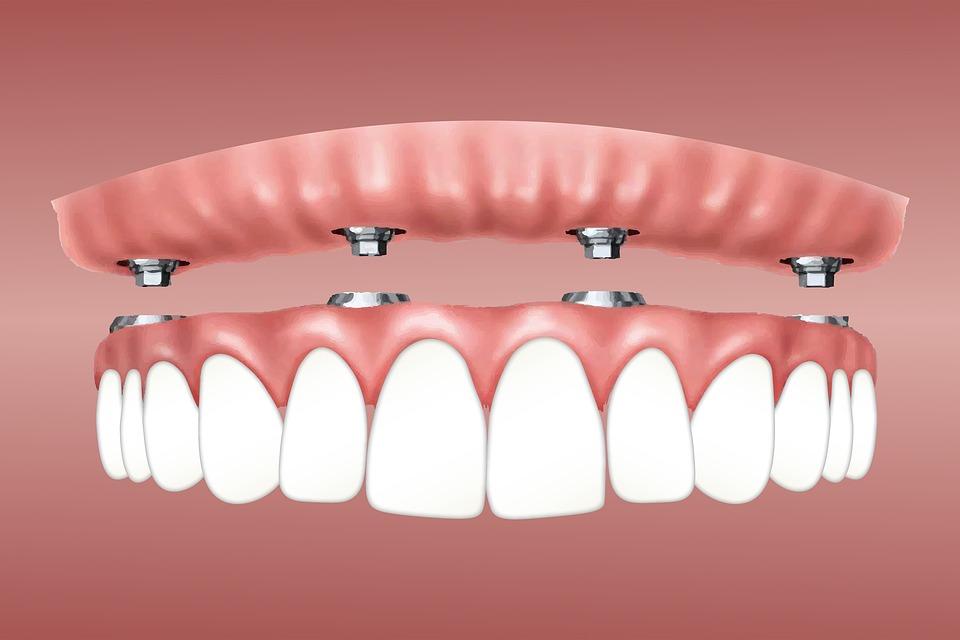 Уход за зубными протезами и имплантами!