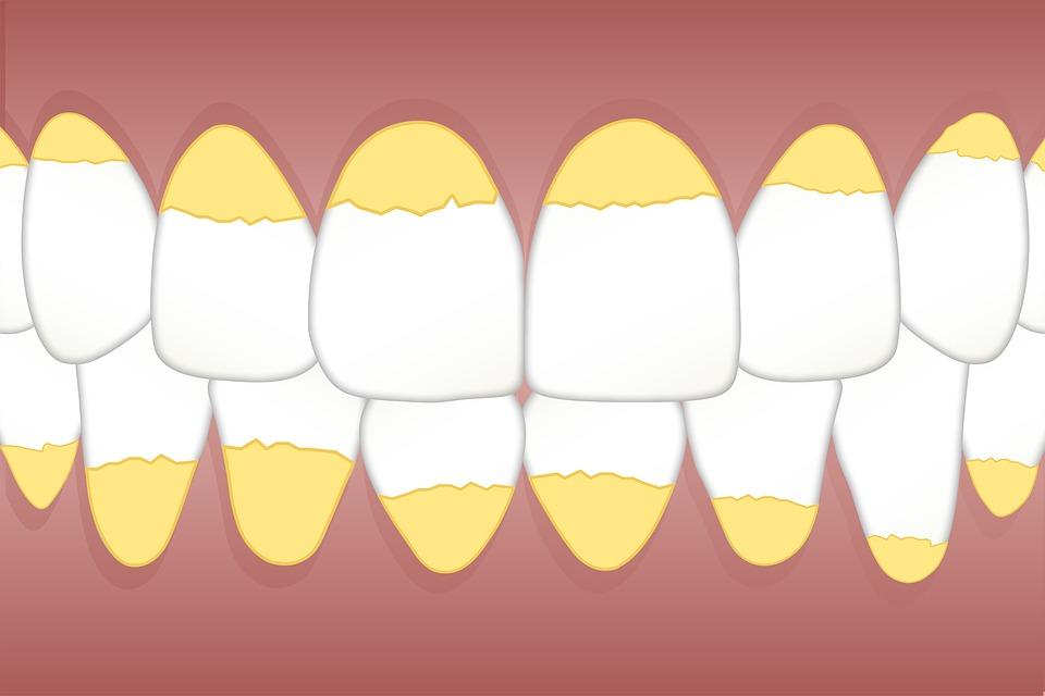 Удаление зубного налета и предотвращение образования зубного камня!