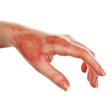 рисунок: ожог на руке