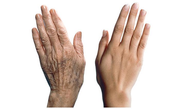 Как остановить старение рук?