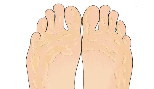кератодермия стопы. наростание рогового слоя кожи