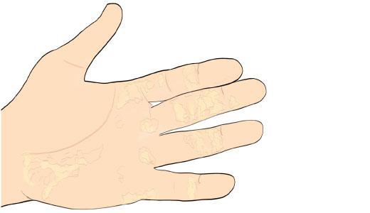 ксероз ладоней (сухость и шелушение кожи)