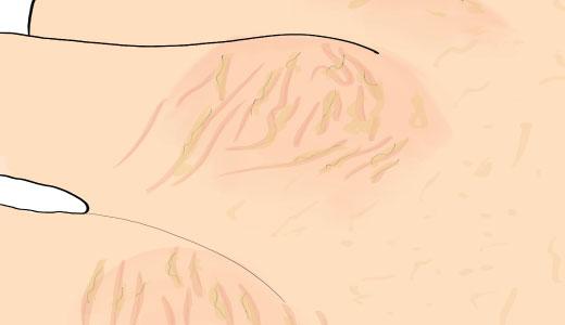 рисунок: гиперкератоз на костяшках пальцев