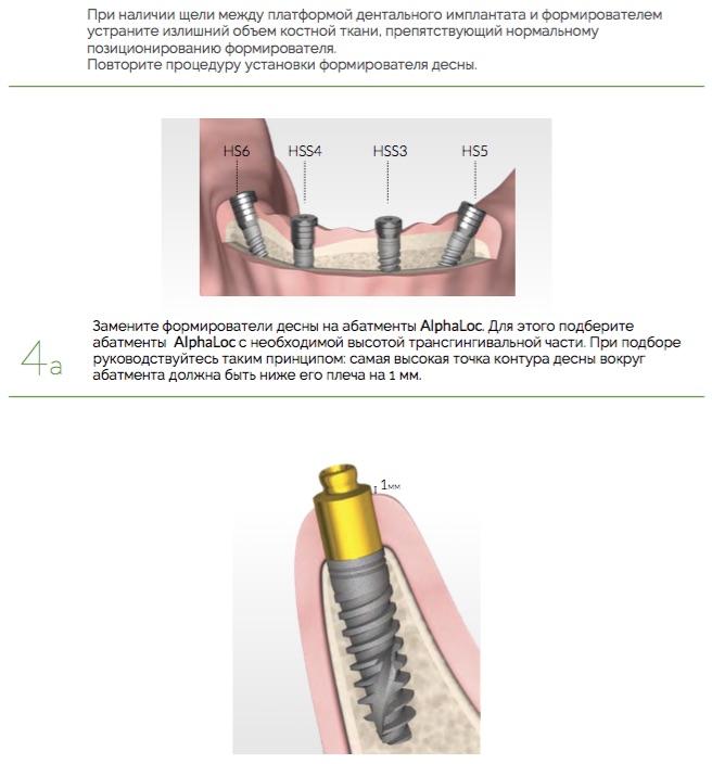 Протезирование_AlphaLoc_Ортопедический_протокол._Клинические_этапы_2.jpg