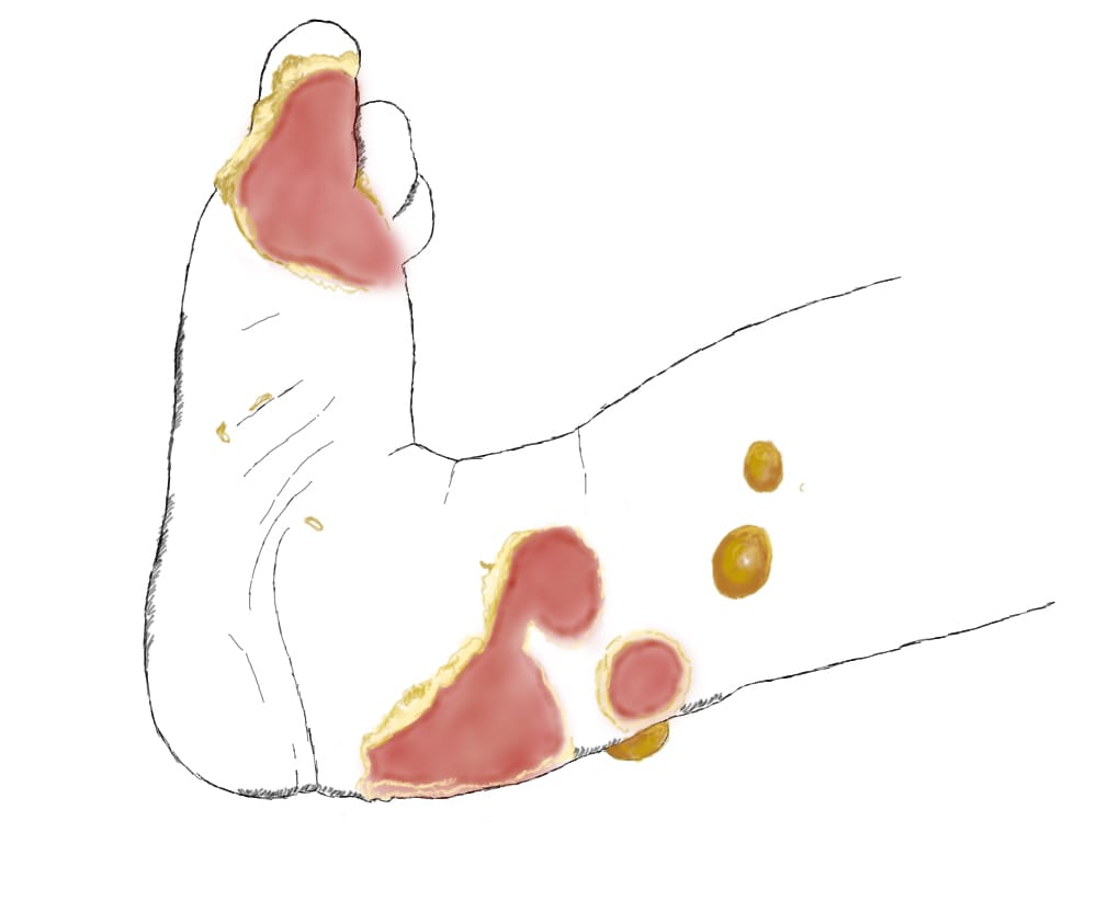 картинка раны на стопе при буллезном эпидермолизе