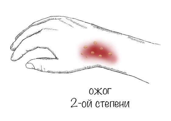 statja_ris_ozhog2_opti.jpg
