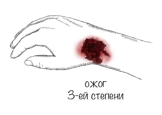 statja_ris_ozhog3_opti.jpg
