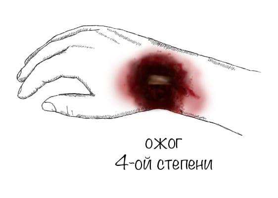 statja_ris_ozhog4_opti.jpg