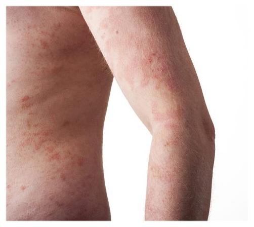 Лечение воспаления кожи маслом миндального ореха