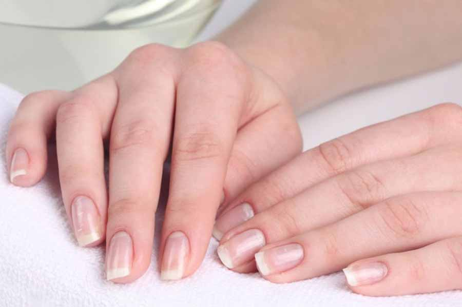 Отбеливание ногтей в домашних условиях